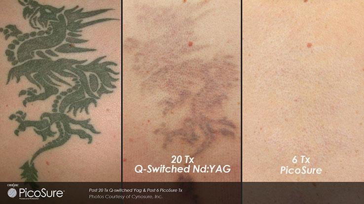 PicoSure Tattoo Removal | LaserXX | Los Angeles, CA